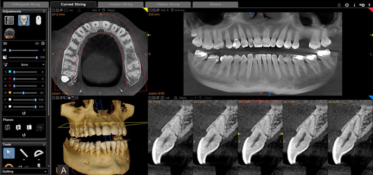 Zahnarzt-Spectrum-UKE-3D-DVT-Roentgen